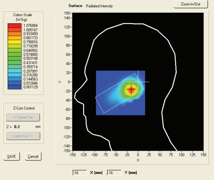 Mobile phone batterie radiation spread over a users head